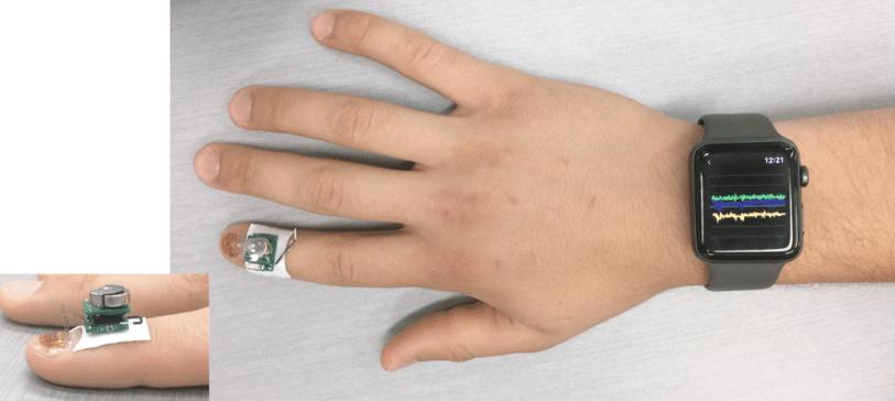 ibm's-tiny-fingernail-sensor-monitors-diseases-movement-disorders
